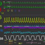 肺高血圧クライシス