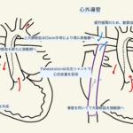 Fontan手術の周術期管理