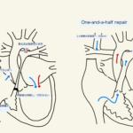 純型肺動脈閉鎖の周術期管理