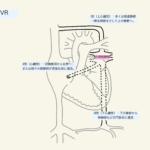 部分/完全肺静脈還流異常症の周術期管理